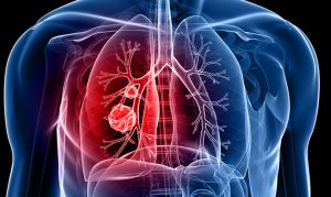 lung cancer i/stock image
